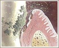 歯周病の現状